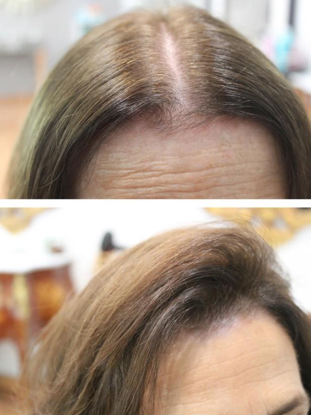 Si duele a menudo la cabeza y caen los cabellos